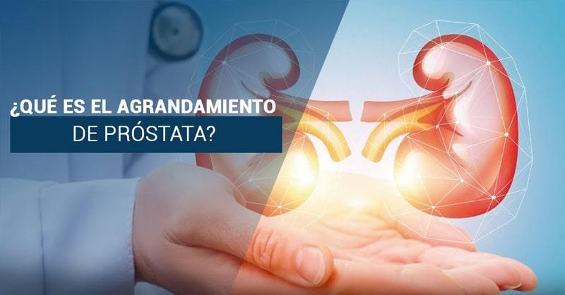 ¿Sabias que el agrandamiento de prostata puede obstruir las vias urinarias y esto a su vez causar insuficiencia renal aguda?