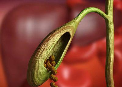 Calculos a la vesicula = ¿Cirugía de emergencia?